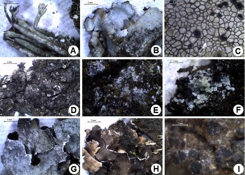 Microscopic image of new addition to Uttarakhand: A, Cladonia subsquamosa Kremp.; B, Remototrachyna incognita (Kurok.) Hale.; C, Lecidella  alaiensis (Vain.) Hertel.; D, Melanelia disjuncta (Erichsen). Essl.; E, Melanohalea infumata (Nyl.) O. Blanco & al.; F, Normandina pulchella (Borrer) Nyl.; G, Parmelia squarrosa Hale.; H, Peltigera collina (Ach.) Schrad.; I, Rinodina megaspore (D.D. Awasthi & M.R. Agarwal) D.D. Awasthi.