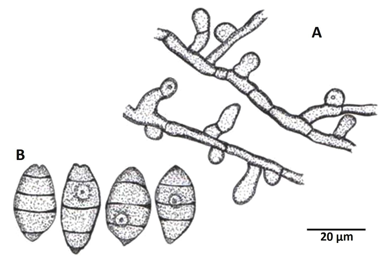 Mitteriella ziziphina: A, Branched appressoriate mycelium; B, conidia.