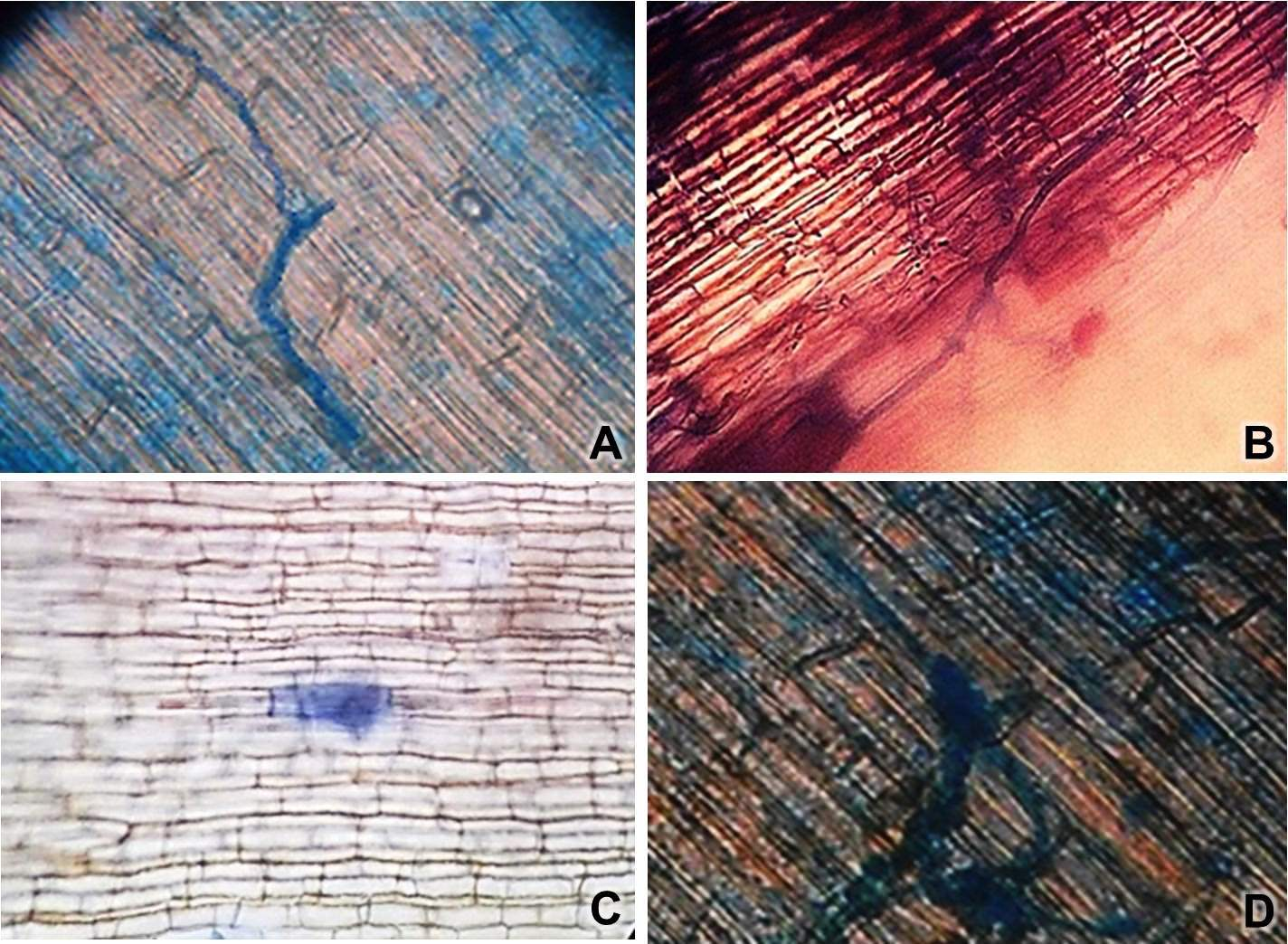 Endophytic fungal structures in Kuruluthuda roots