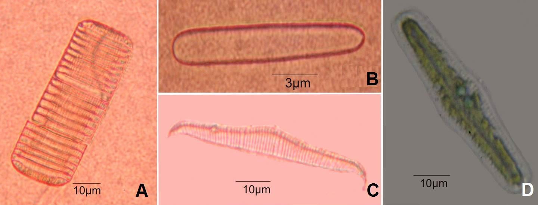 A. Fragilariopsis cylindrus; B. Achnanthidium lineare; C-D. Rhopalodia gibba var. ventricosa (valve & girdle views).