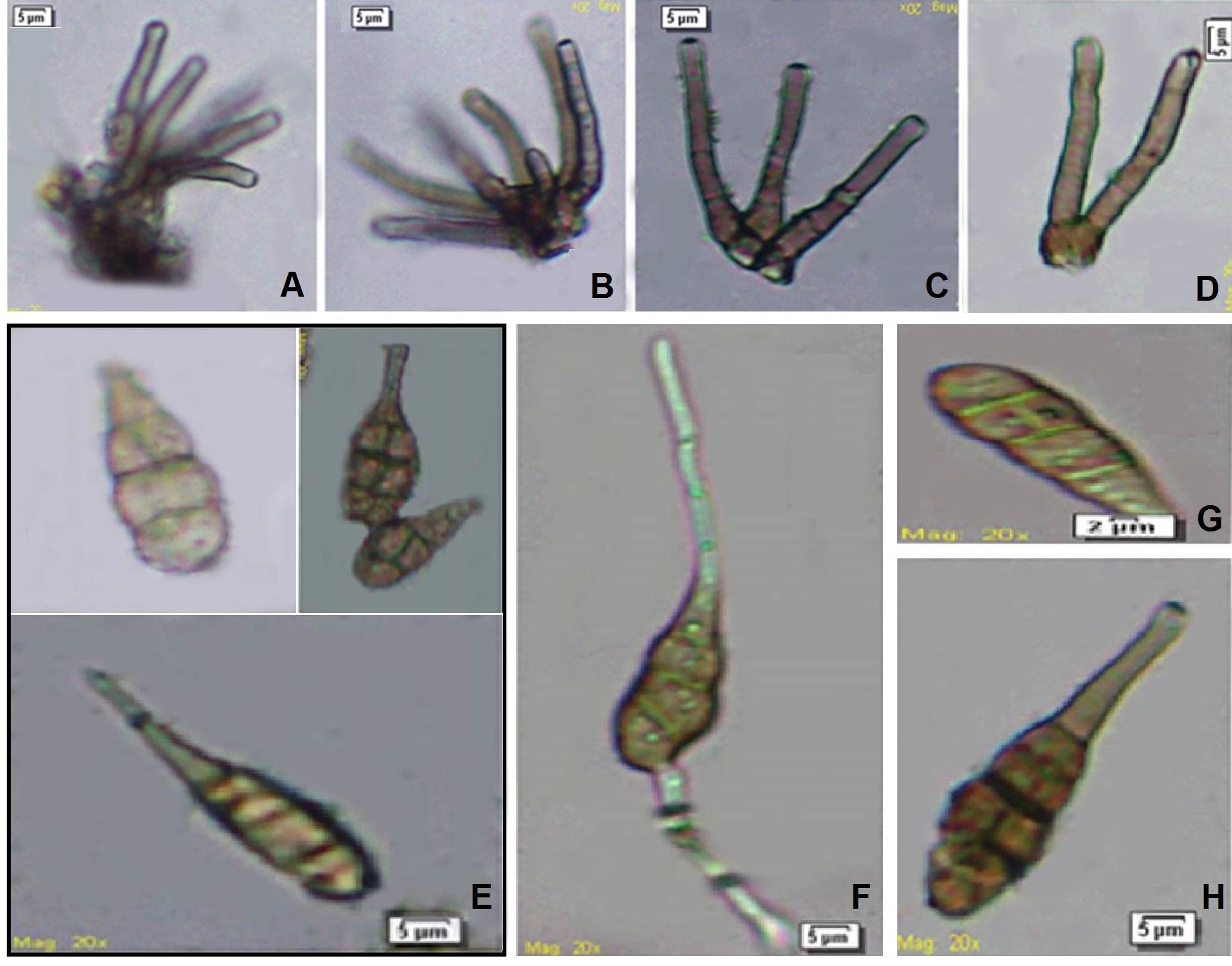 Alternaria polypodiicola (AMH-9515, holotype): A–D, Conidiophores; E–H, Conidia. (Scale bars A–H = 5 μm)