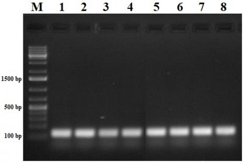 cDNA synthesized from the extracted RNA samples using Revert Aid FIRST strand cDNA synthesis kit (Thermoscientific, USA), Lane M: 1kb plus DNA ladder.