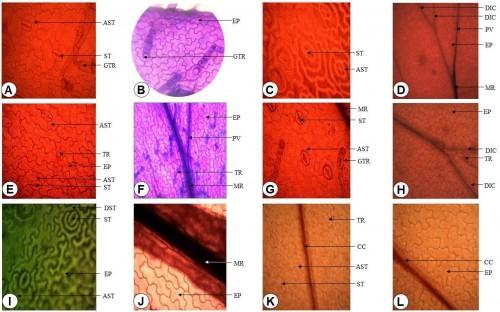 Leaflet anatomical study of <em>Nephrolepis </em>taxa.