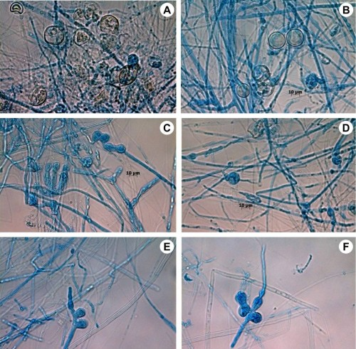 Vegetative and reproductive structures of <em>Pythium aphanidermatum </em>(Edson) Fitzp.: <strong>A–B</strong>, Oogonia; <strong>C–D</strong>, Inflated filamentous Sporangia; <strong>E</strong>, Sporangia with laterally placed Papilla; <strong>F</strong>, Papilla was developed at the apex of Sporangia.