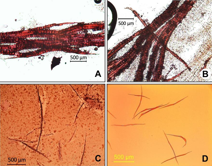 A rapid and economical method for the maceration of wood fibers in Boswellia serrata Roxb.