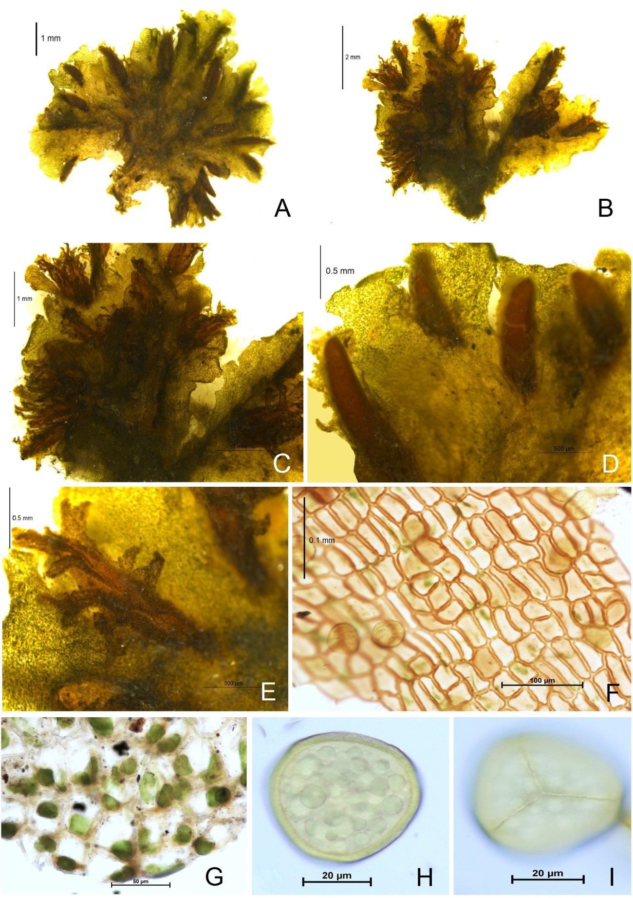Notothylas kashyapii: A–C, Thalli; D, Sporophytes in the apical region; E, Lamellae present on involucres; F, Capsule wall; G, chloroplast; H–I, Spores.