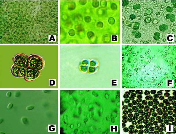 A, Microcystis aeruginosa; B, Microcystis flos-aquae; C, Chroococcus minutus; D, C. varius; E, C. minor; F, Aphanocapsa grevillei; G, A. Montana; H, Aphanothece microscopica; I, Coelosphaerium kuetzingianum.